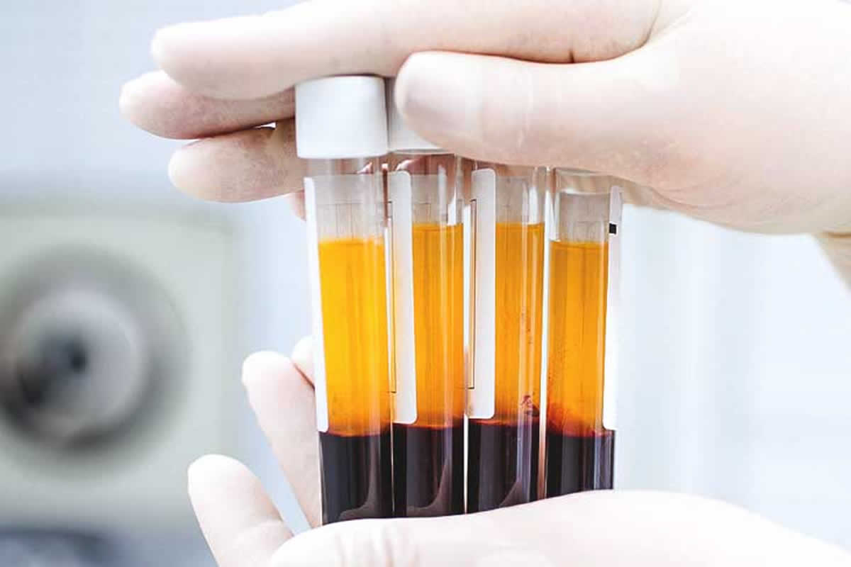 Can I Get Help with Platelet-rich Plasma?