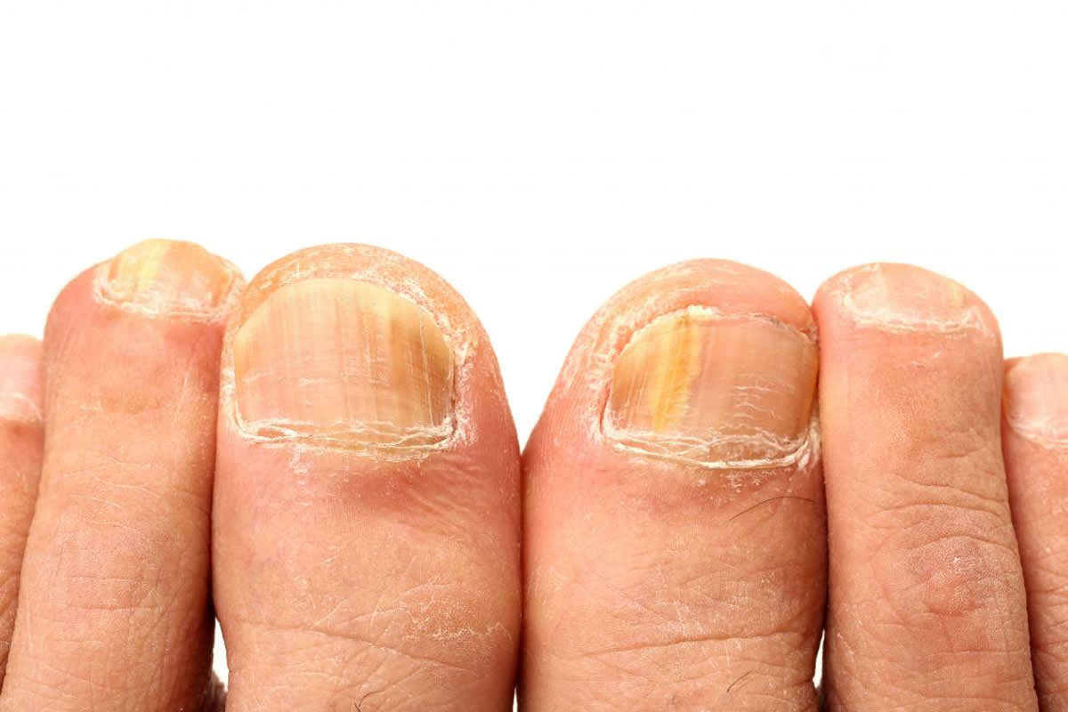 4 Common Foot Problems