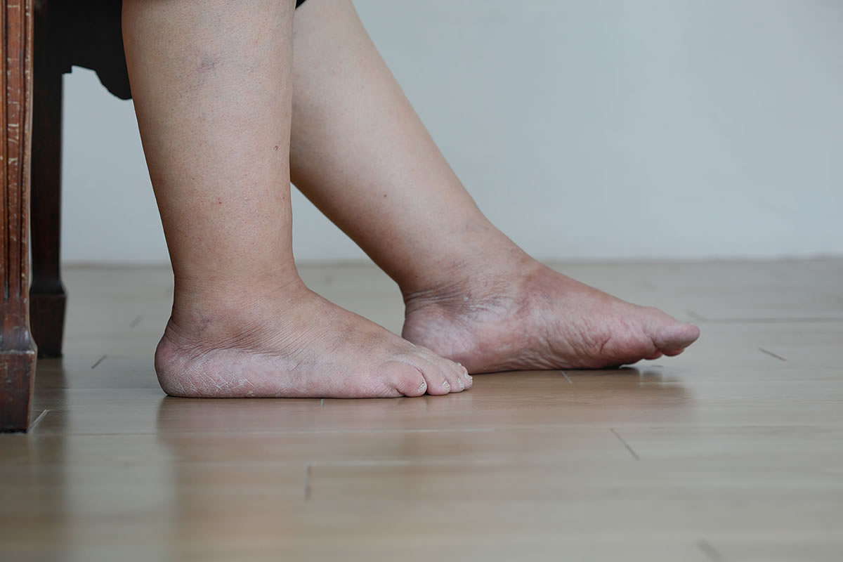 Four Reasons Why You Might Have Swelling in Your Feet