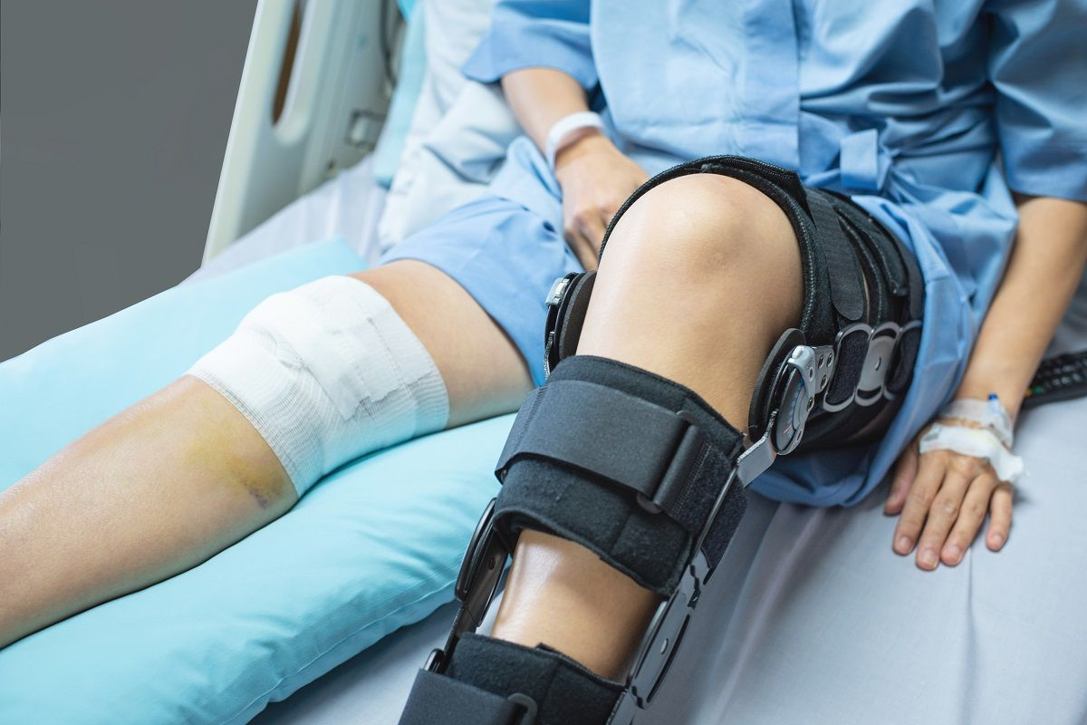 How to Properly Recover from an Orthopedic Surgery